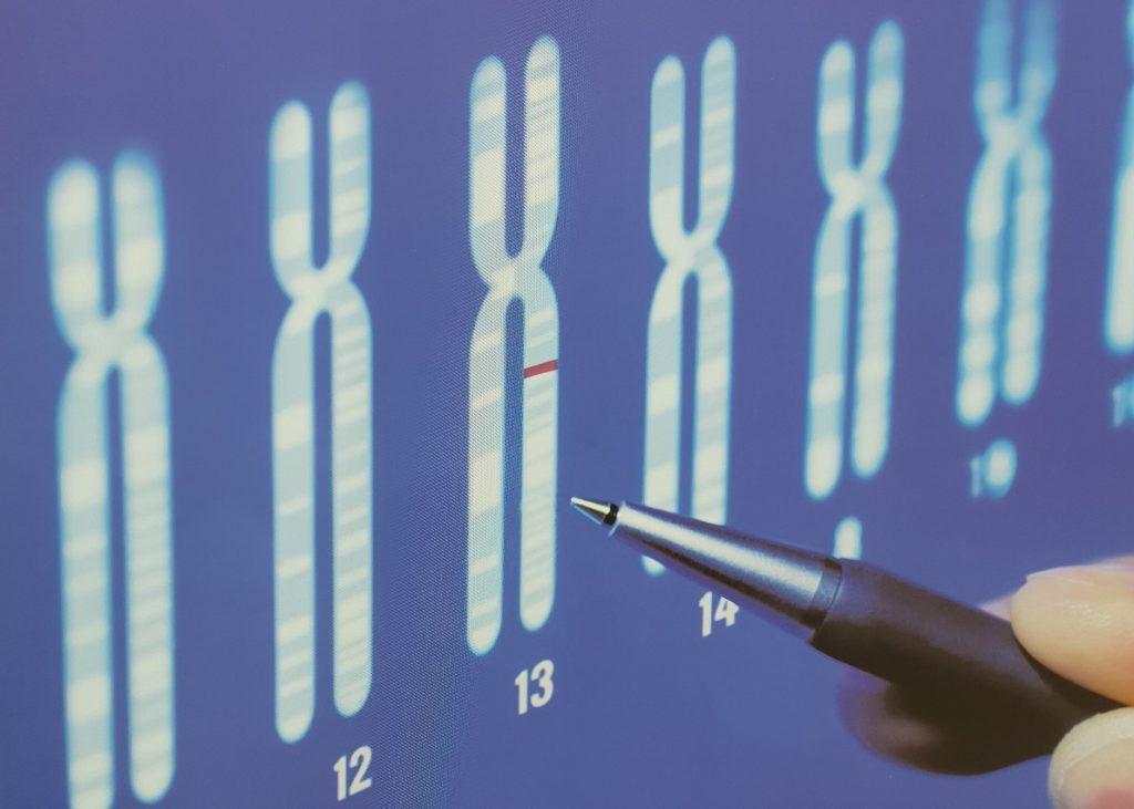 """tumore-seno,-zuradelli-(humanitas):-""""test-genetici-per-medicina-di-precisione"""""""